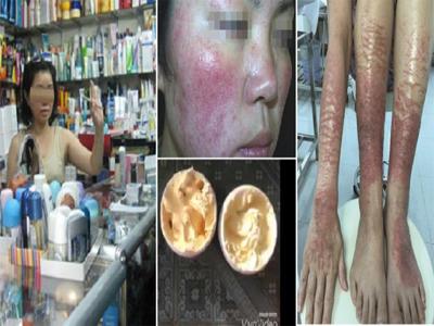 """Cô bé 15 tuổi tại tỉnh Đồng Tháp chết tức tưởi vì dùng kem tắm trắng """"giá 9,000 đồng"""""""